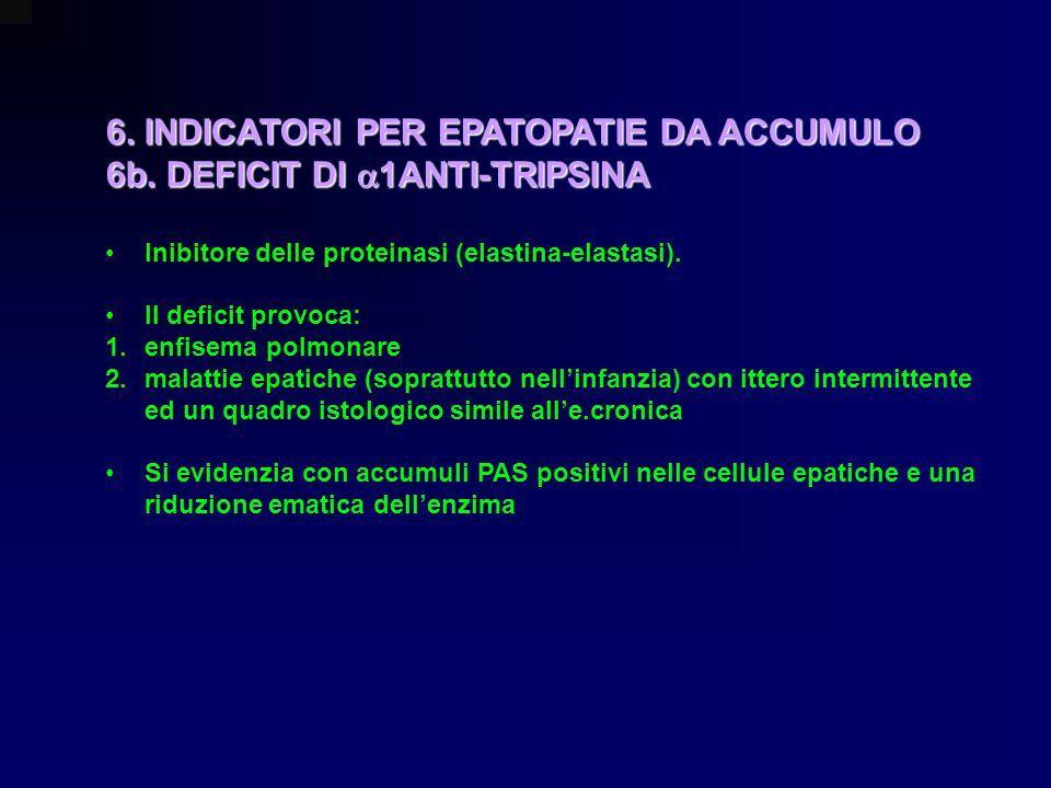 6. INDICATORI PER EPATOPATIE DA ACCUMULO 6b. DEFICIT DI 1ANTI-TRIPSINA Inibitore delle proteinasi (elastina-elastasi). Il deficit provoca: 1.enfisema