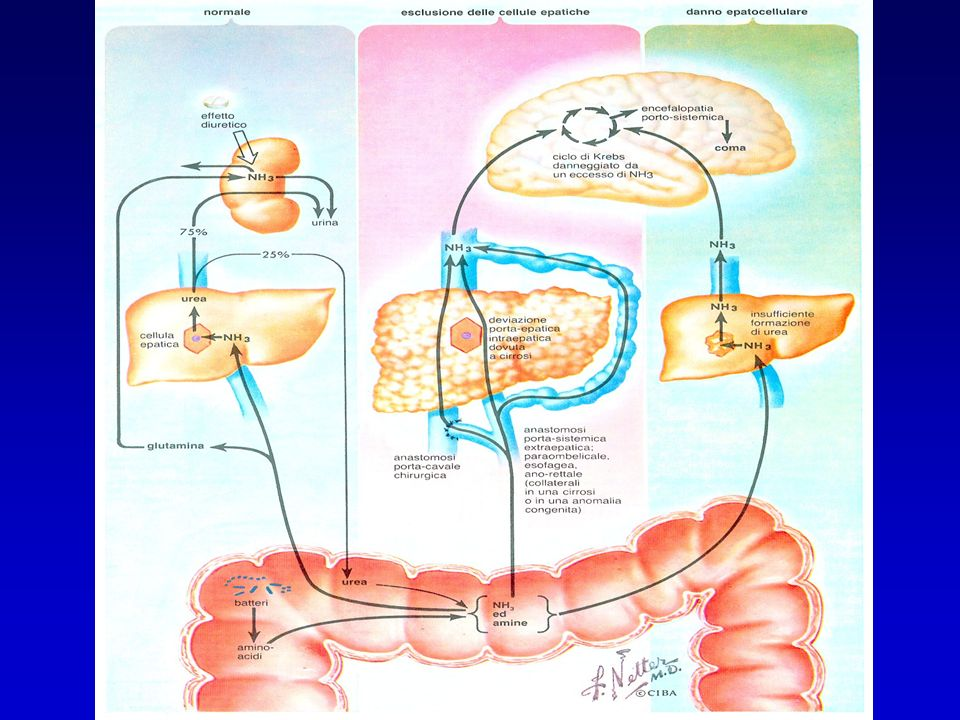 ENCEFALOPATIA: patogenesi TEORIE accumulo di sostanze tossiche, in particolare lammonio accumulo di falsi neurotrasmettitori (octopamina…) per alterazione del rapporto sierico tra aminoacidi aromatici e a catena ramificata accumulo di GABA e di benzodiazepine endogene