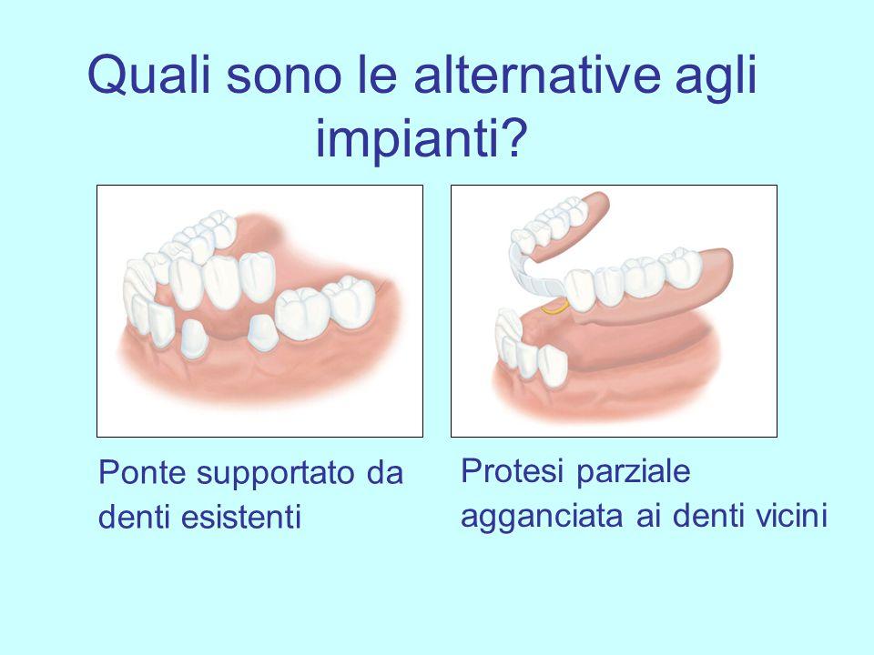 Quali sono le alternative agli impianti? Ponte supportato da denti esistenti Protesi parziale agganciata ai denti vicini