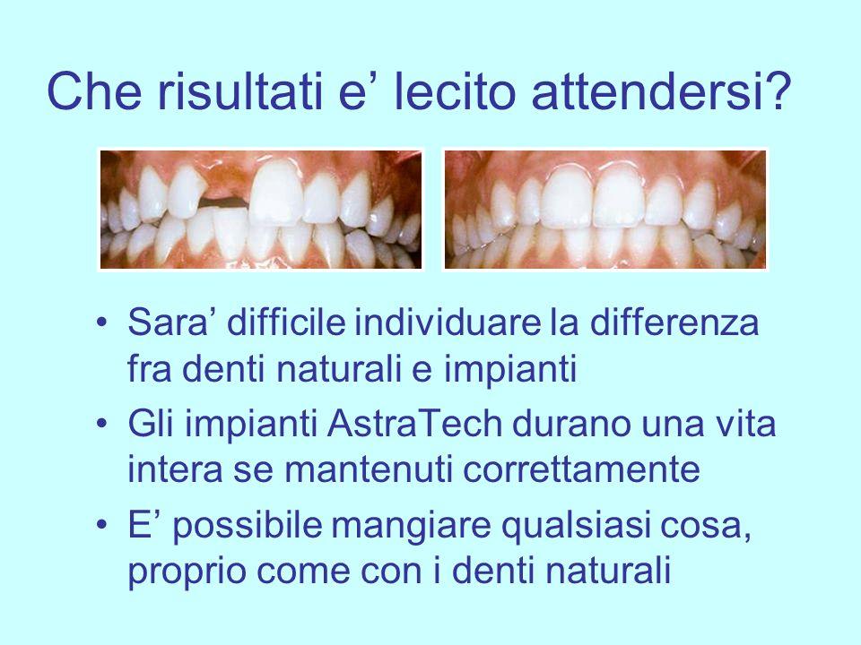 Che risultati e lecito attendersi? Sara difficile individuare la differenza fra denti naturali e impianti Gli impianti AstraTech durano una vita inter