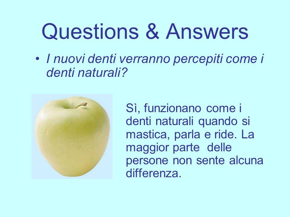 Questions & Answers I nuovi denti verranno percepiti come i denti naturali? Sì, funzionano come i denti naturali quando si mastica, parla e ride. La m