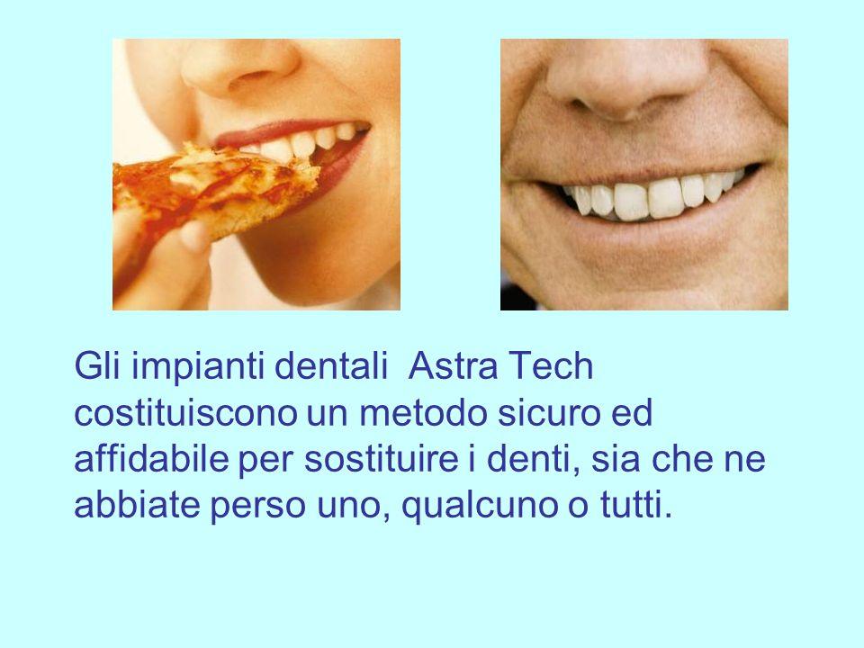 I vostri nuovi denti appariranno e verranno percepiti come denti naturali permettendovi di ridere con piena fiducia.