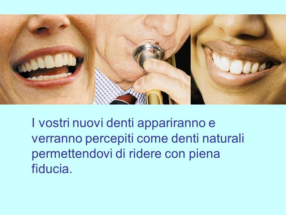 Questions & Answers I nuovi denti verranno percepiti come i denti naturali.