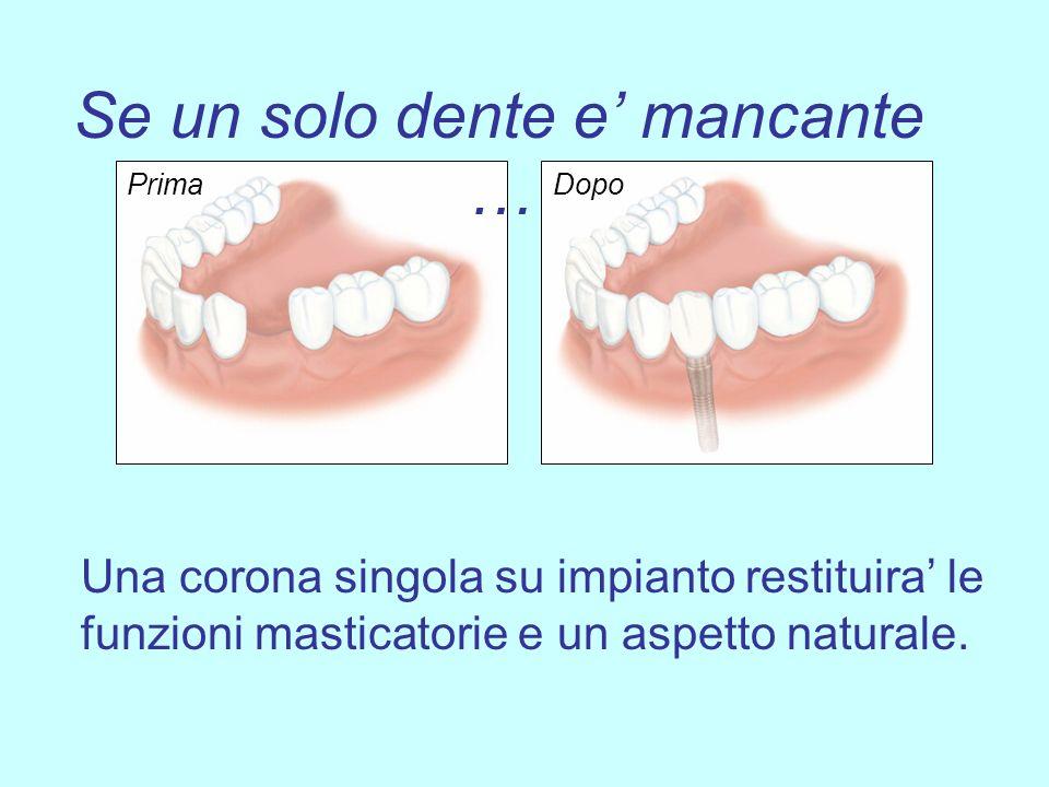 Se un solo dente e mancante … Una corona singola su impianto restituira le funzioni masticatorie e un aspetto naturale. PrimaDopo