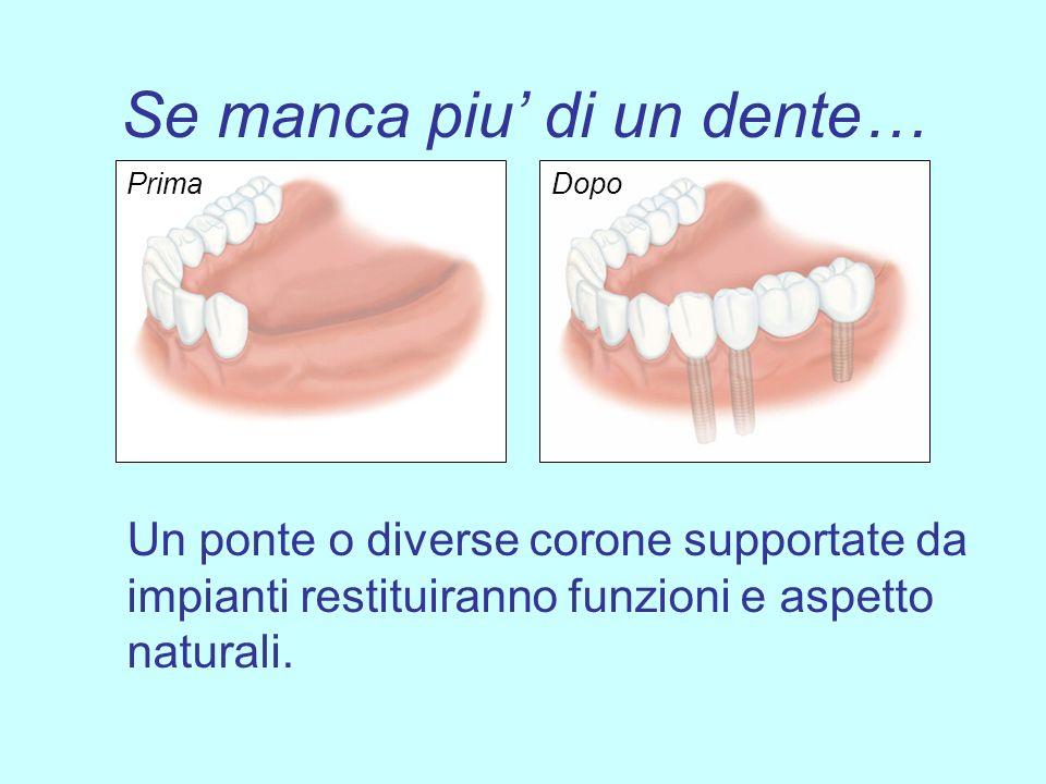 Se manca piu di un dente… Un ponte o diverse corone supportate da impianti restituiranno funzioni e aspetto naturali. PrimaDopo