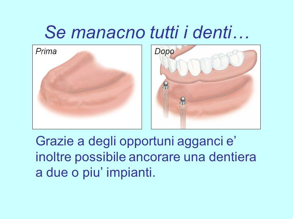 Se manacno tutti i denti… Grazie a degli opportuni agganci e inoltre possibile ancorare una dentiera a due o piu impianti. DopoPrima