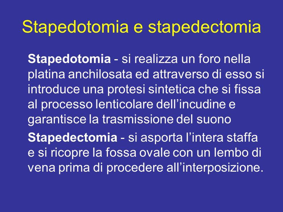 Stapedotomia e stapedectomia Stapedotomia - si realizza un foro nella platina anchilosata ed attraverso di esso si introduce una protesi sintetica che si fissa al processo lenticolare dellincudine e garantisce la trasmissione del suono Stapedectomia - si asporta lintera staffa e si ricopre la fossa ovale con un lembo di vena prima di procedere allinterposizione.