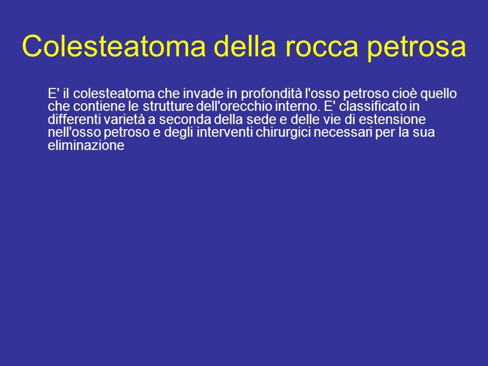 Colesteatoma della rocca petrosa E il colesteatoma che invade in profondità l osso petroso cioè quello che contiene le strutture dell orecchio interno.