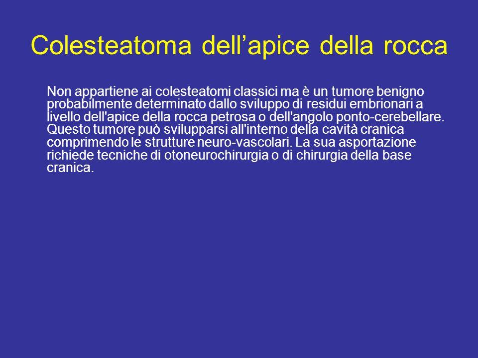 Colesteatoma dellapice della rocca Non appartiene ai colesteatomi classici ma è un tumore benigno probabilmente determinato dallo sviluppo di residui embrionari a livello dell apice della rocca petrosa o dell angolo ponto-cerebellare.