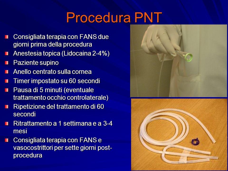 Procedura PNT Consigliata terapia con FANS due giorni prima della procedura Anestesia topica (Lidocaina 2-4%) Paziente supino Anello centrato sulla co