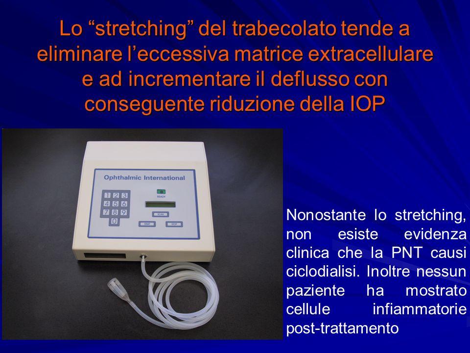 Lo stretching del trabecolato tende a eliminare leccessiva matrice extracellulare e ad incrementare il deflusso con conseguente riduzione della IOP Nonostante lo stretching, non esiste evidenza clinica che la PNT causi ciclodialisi.