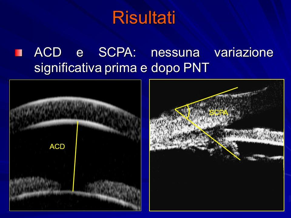 Risultati ACD e SCPA: nessuna variazione significativa prima e dopo PNT ACD SCPA