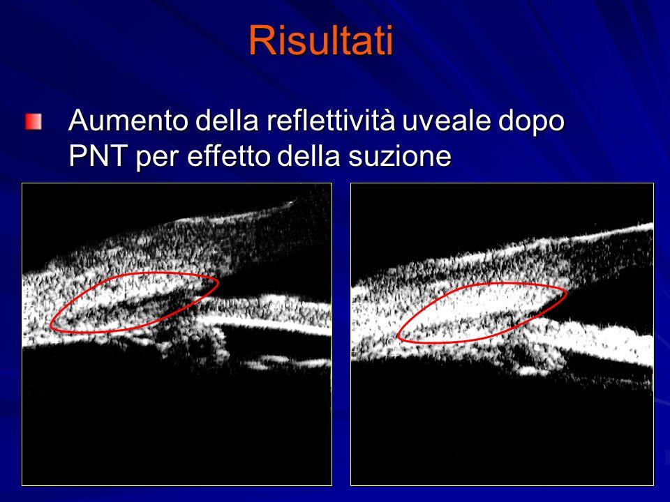 Risultati Aumento della reflettività uveale dopo PNT per effetto della suzione