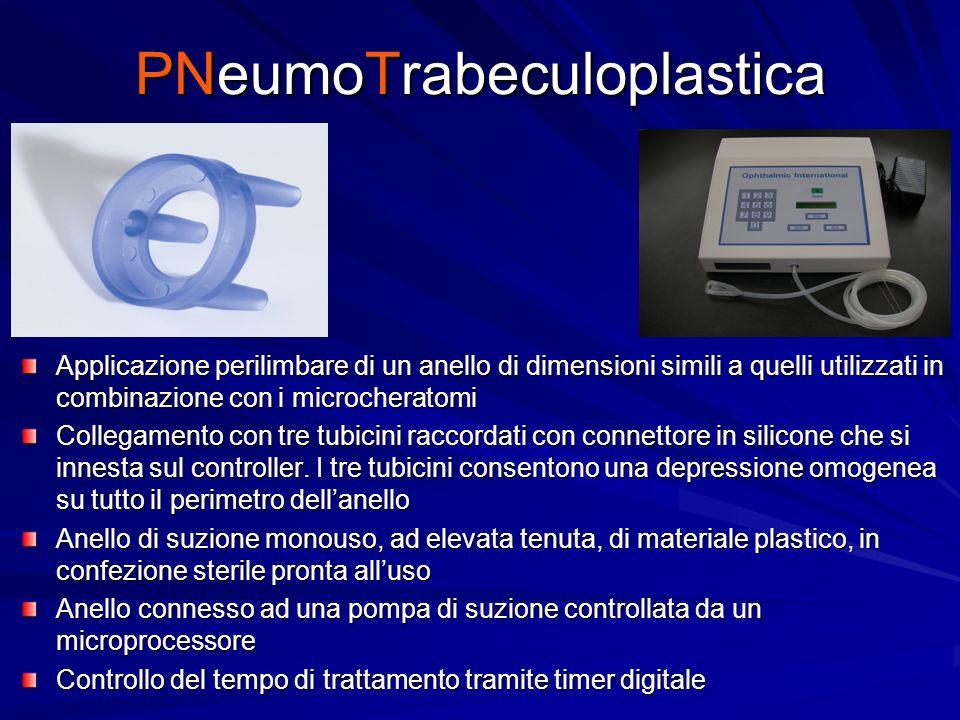 PNeumoTrabeculoplastica Applicazione perilimbare di un anello di dimensioni simili a quelli utilizzati in combinazione con i microcheratomi Collegamen