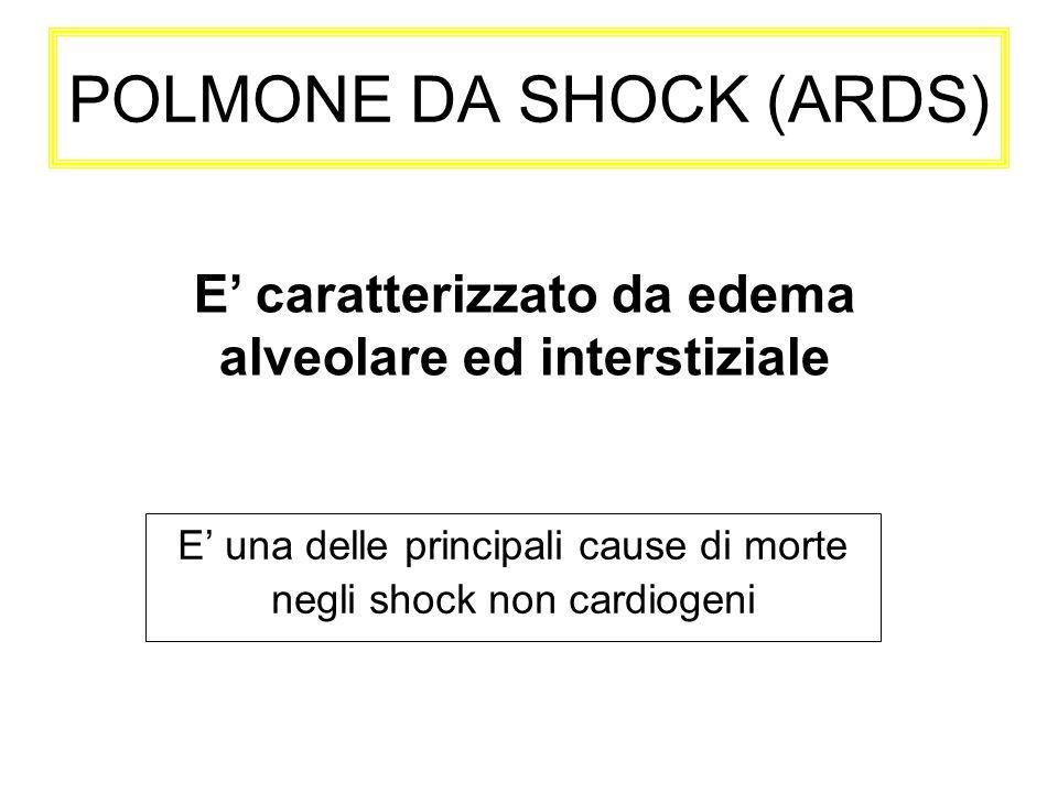 POLMONE DA SHOCK (ARDS) E una delle principali cause di morte negli shock non cardiogeni E caratterizzato da edema alveolare ed interstiziale
