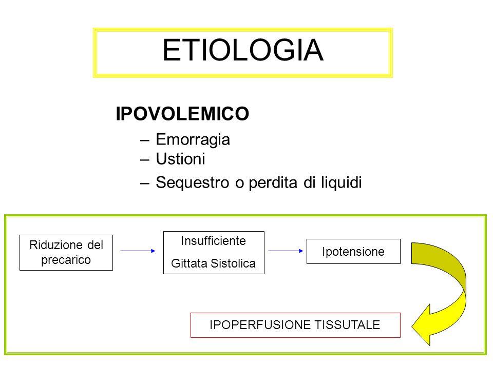 ETIOLOGIA IPOVOLEMICO –Emorragia –Ustioni –Sequestro o perdita di liquidi Riduzione del precarico Insufficiente Gittata Sistolica Ipotensione IPOPERFU
