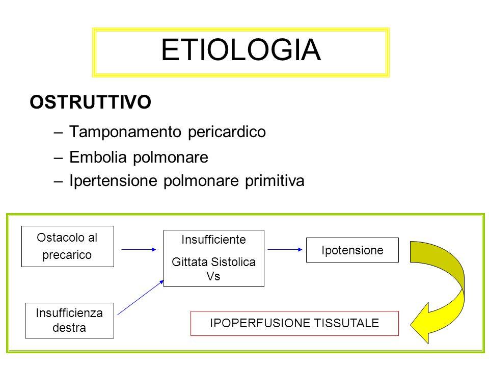 OSTRUTTIVO –Tamponamento pericardico –Embolia polmonare –Ipertensione polmonare primitiva ETIOLOGIA Ostacolo al precarico Insufficiente Gittata Sistol