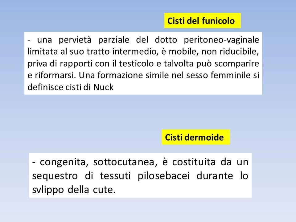 - una pervietà parziale del dotto peritoneo-vaginale limitata al suo tratto intermedio, è mobile, non riducibile, priva di rapporti con il testicolo e
