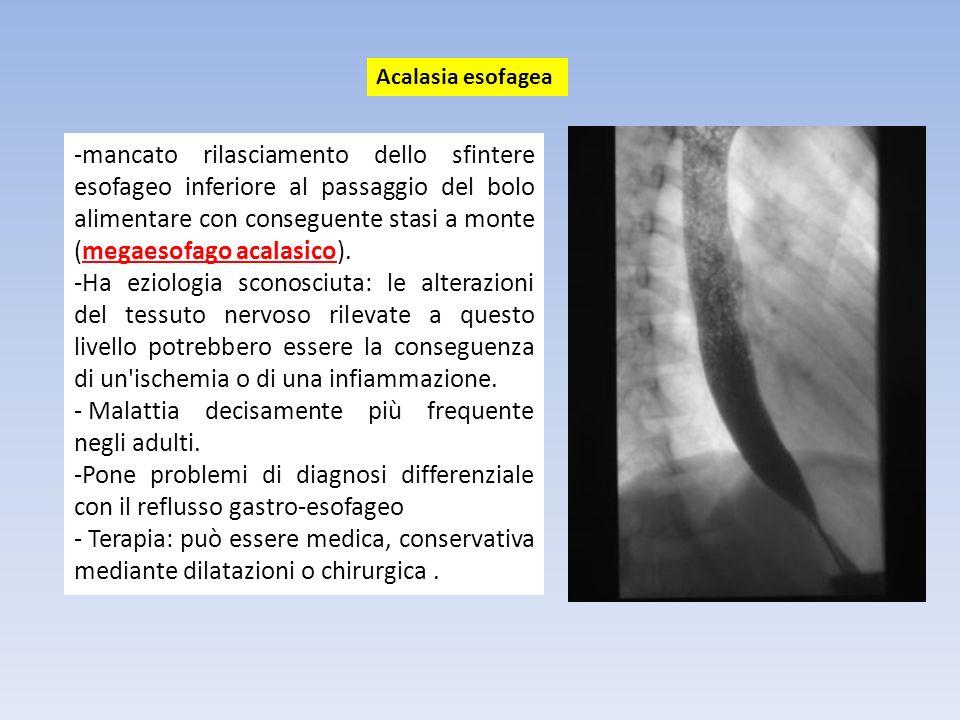 -è una malformazione relativamente frequente (1 caso ogni 2.000 - 5.000 nuovi nati), e consiste in una mancata formazione, parziale o subtotale, in uno dei due diaframmi che mette in comunicazione la cavità addominale con il torace.
