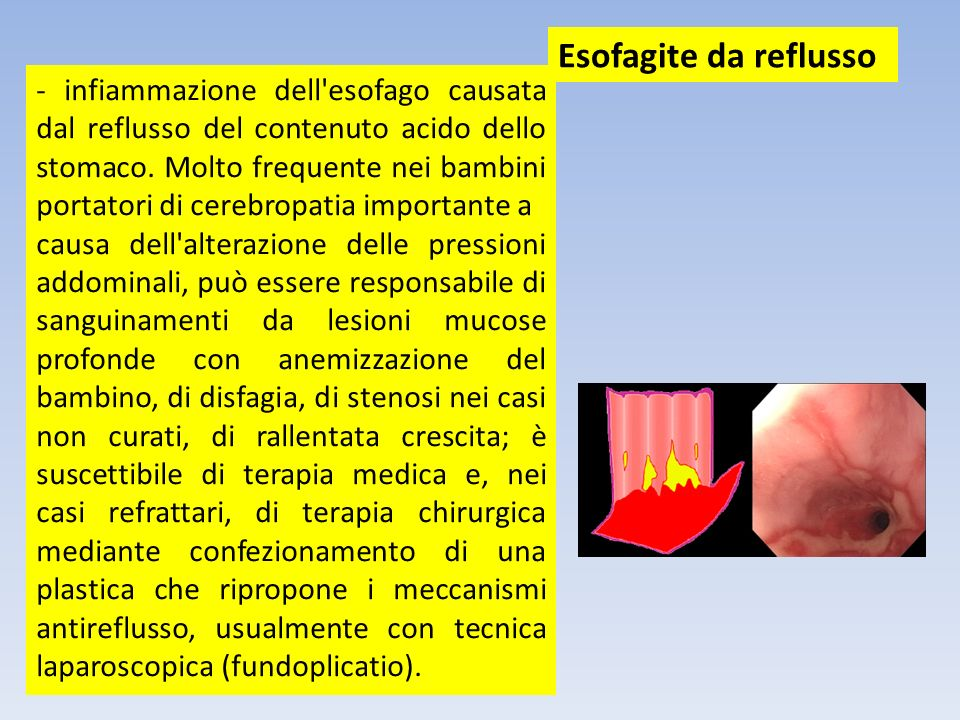 - infiammazione dell'esofago causata dal reflusso del contenuto acido dello stomaco. Molto frequente nei bambini portatori di cerebropatia importante