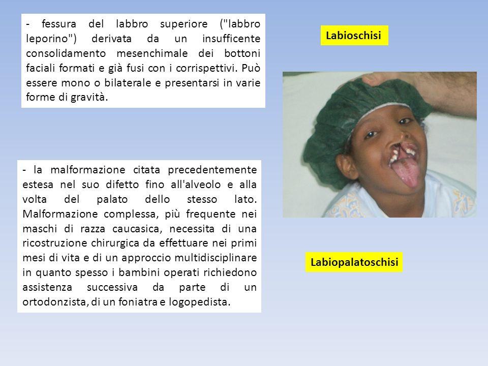 - fessura del labbro superiore (