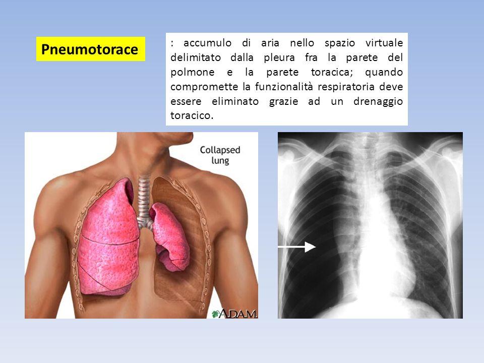 : accumulo di aria nello spazio virtuale delimitato dalla pleura fra la parete del polmone e la parete toracica; quando compromette la funzionalità re