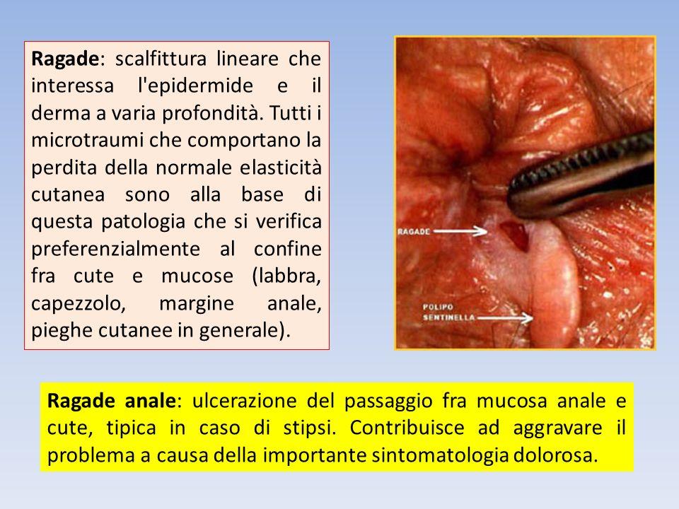 Ragade anale: ulcerazione del passaggio fra mucosa anale e cute, tipica in caso di stipsi. Contribuisce ad aggravare il problema a causa della importa