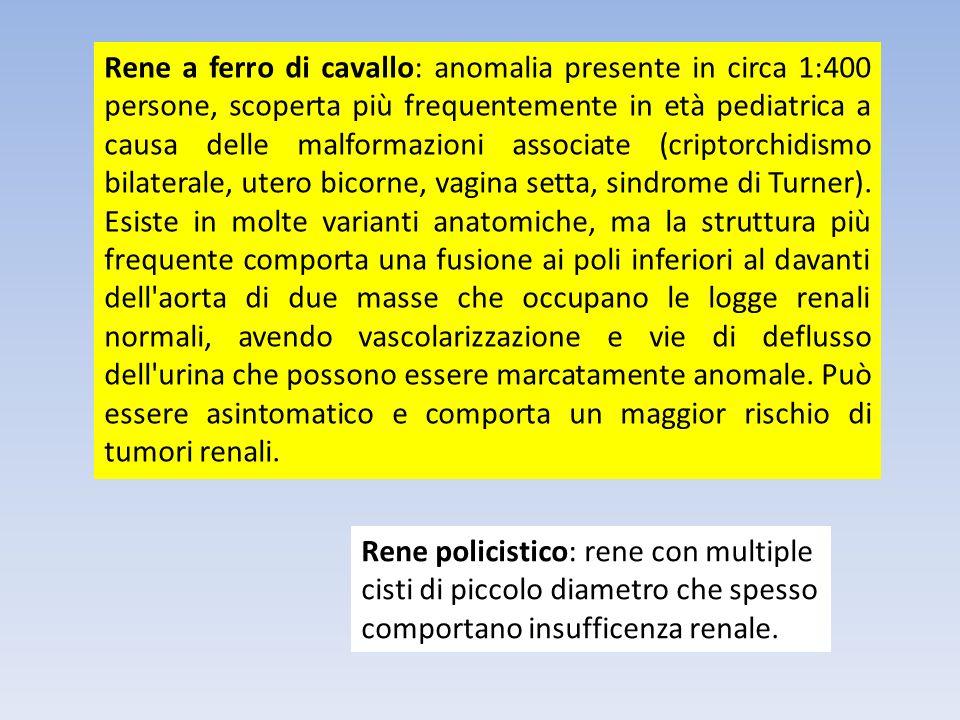Rene a ferro di cavallo: anomalia presente in circa 1:400 persone, scoperta più frequentemente in età pediatrica a causa delle malformazioni associate