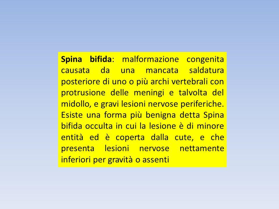 Spina bifida: malformazione congenita causata da una mancata saldatura posteriore di uno o più archi vertebrali con protrusione delle meningi e talvol