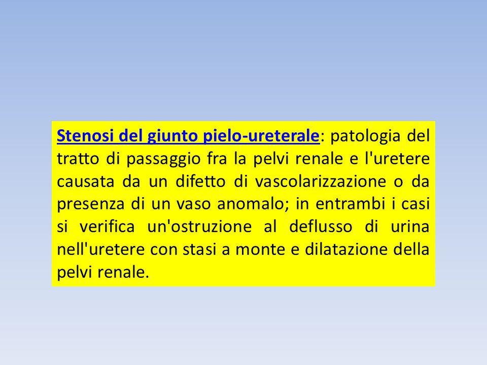 Stenosi del giunto pielo-ureteraleStenosi del giunto pielo-ureterale: patologia del tratto di passaggio fra la pelvi renale e l'uretere causata da un