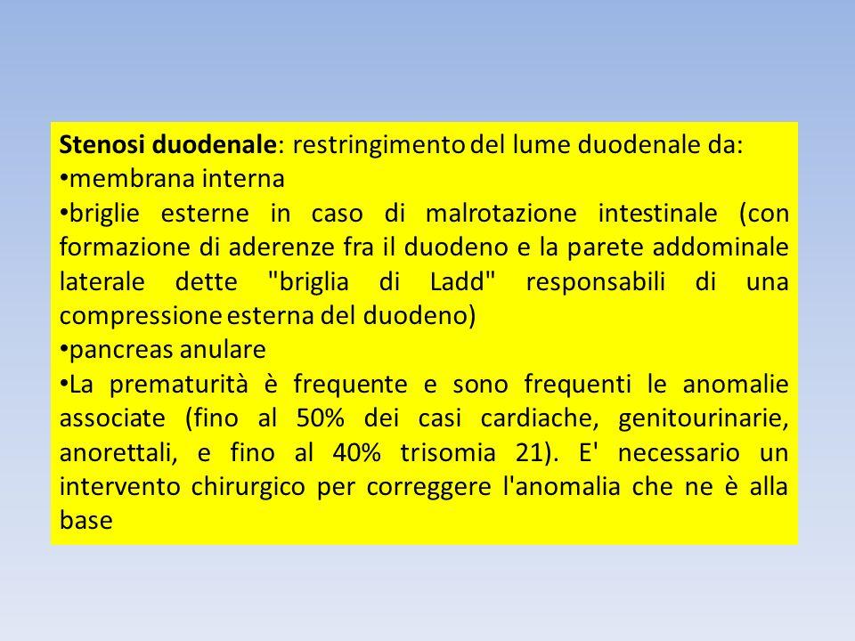 Stenosi duodenale: restringimento del lume duodenale da: membrana interna briglie esterne in caso di malrotazione intestinale (con formazione di adere