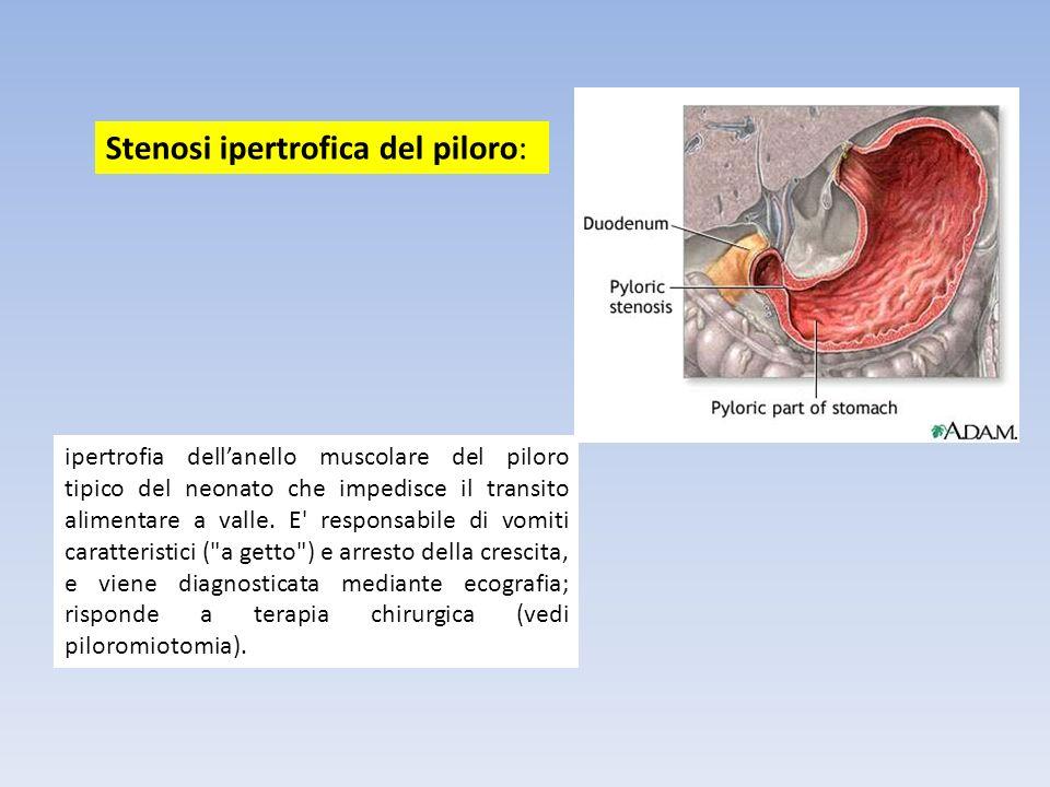 ipertrofia dellanello muscolare del piloro tipico del neonato che impedisce il transito alimentare a valle. E' responsabile di vomiti caratteristici (