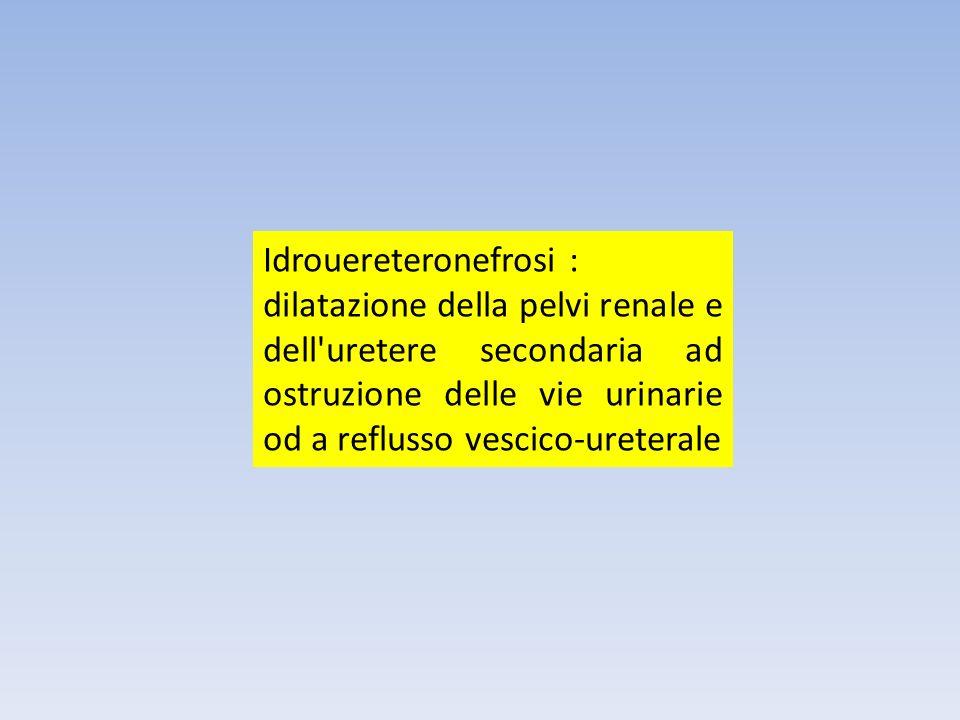Idrouereteronefrosi : dilatazione della pelvi renale e dell'uretere secondaria ad ostruzione delle vie urinarie od a reflusso vescico-ureterale