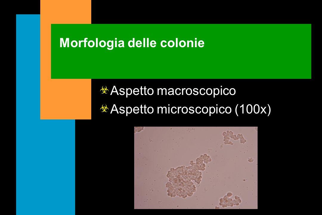 Pigmento I micobatteri si distinguono in: non cromogeni scotocromogeni fotocromogeni