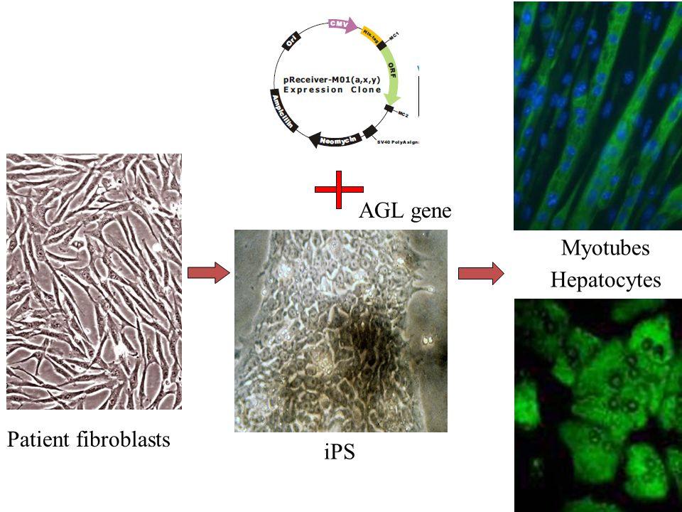 Patient fibroblasts iPS AGL gene Hepatocytes Myotubes