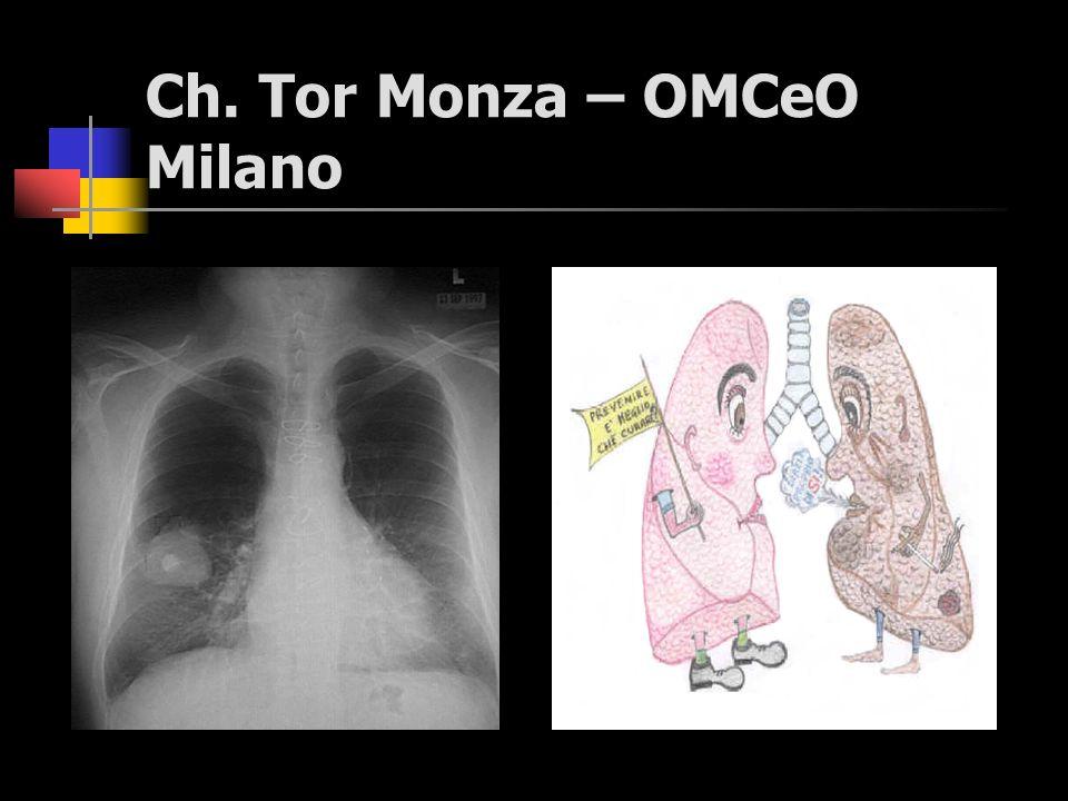 Ch. Tor Monza – OMCeO Milano (*) Lanciato per la prima volta nel 1987, il Codice Europeo è stato recentemente aggiornato dalla Scuola Europea di Oncol