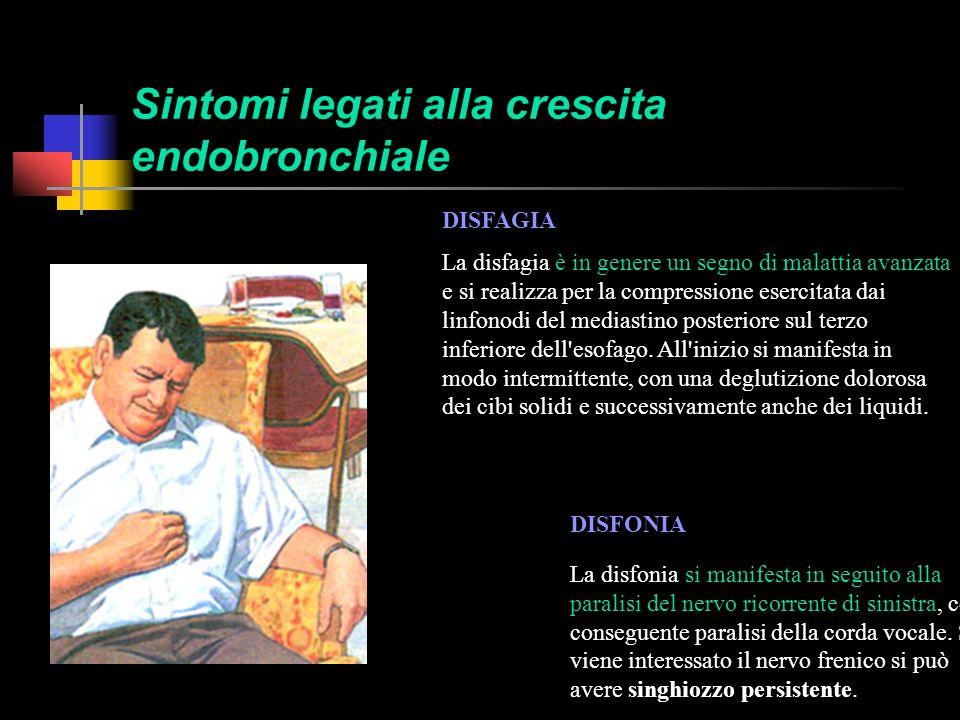 Sintomi legati alla crescita endobronchiale DOLORE TORACICO Il dolore può essere localizzato alla parete toracica (coste, vertebre, sterno), o diffuso ad un emitorace.