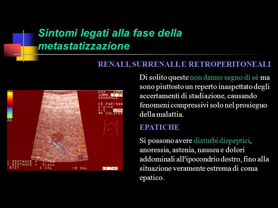 Sintomi legati alla fase della metastatizzazione Le metastasi a distanza assumono un forte significato prognostico negativo.