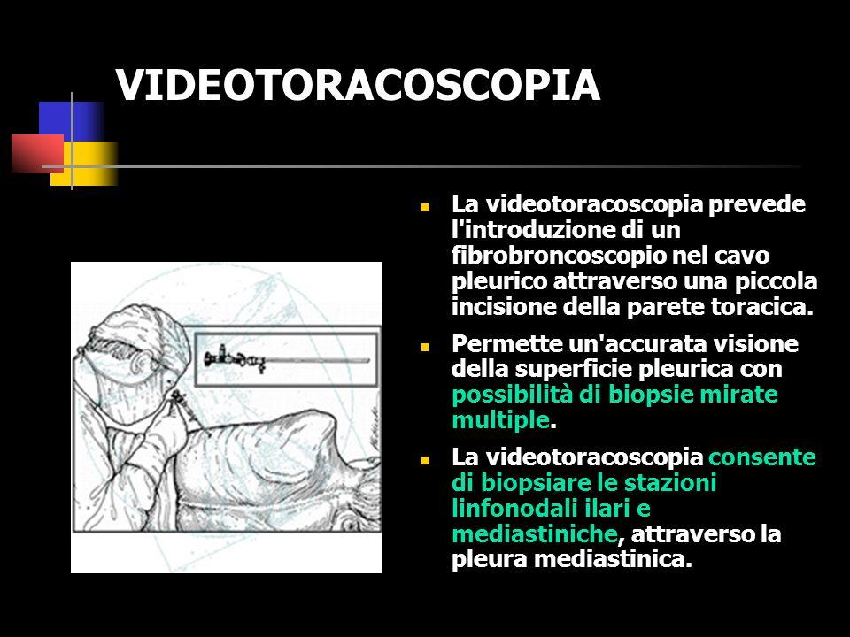 AGOBIOPSIA TRANSTORACICA Lagobiopsia transtoracica percutanea consiste in una biopsia intraparenchimale effettuata con ago sottile, attraverso la parete toracica, previa anestesia locale, e sotto guida TC.