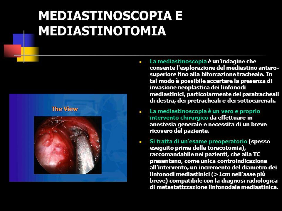 Principali scintigrafie con traccianti positivi ESAME COMMENTO Scintigrafia con Bleomicina Ha solo valore storico.