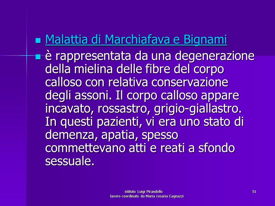 istituto Luigi Pirandello lavoro coordinato da Maria rosaria Cagnazzi 51 Malattia di Marchiafava e Bignami Malattia di Marchiafava e Bignami Malattia