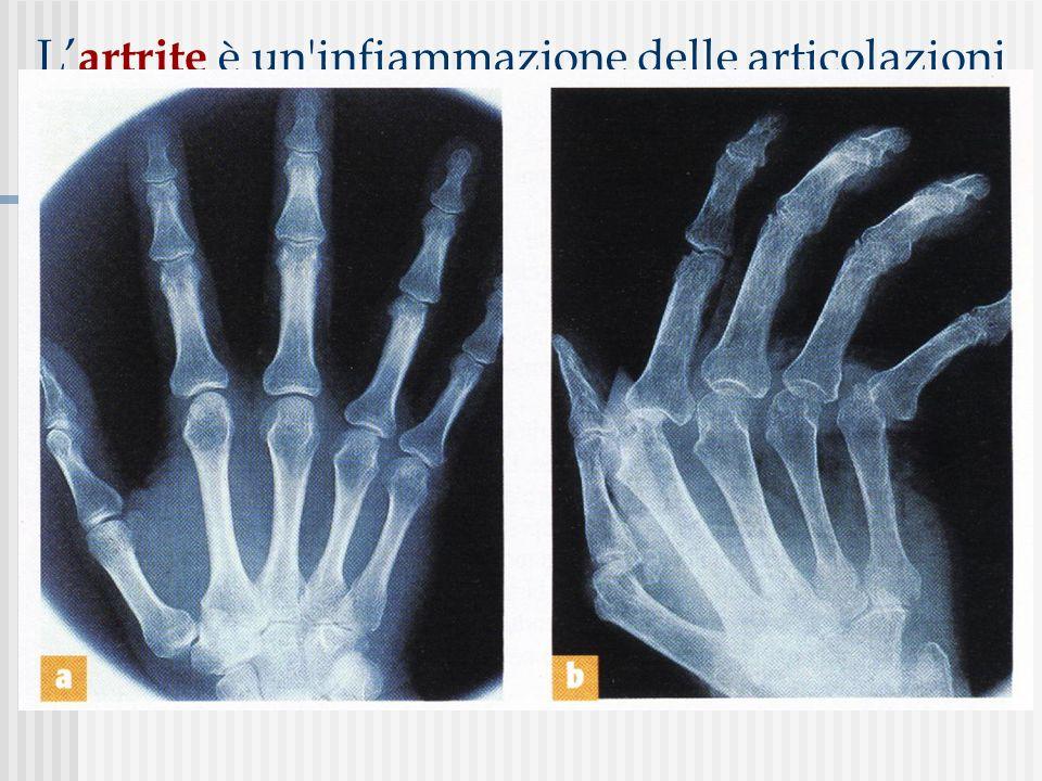 L artrite è un'infiammazione delle articolazioni che si manifesta con dolore e gonfiore; se non curata, può provocare la degenerazione delle cartilagi