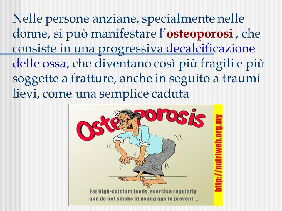 Nelle persone anziane, specialmente nelle donne, si può manifestare l osteoporosi, che consiste in una progressiva decalcificazione delle ossa, che di