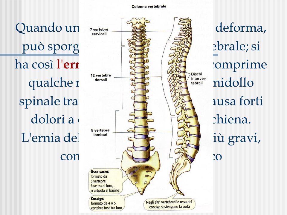 Quando un disco intervertebrale si deforma, può sporgere fuori dal corpo vertebrale; si ha così l' ernia del disco. Se l'ernia comprime qualche nervo