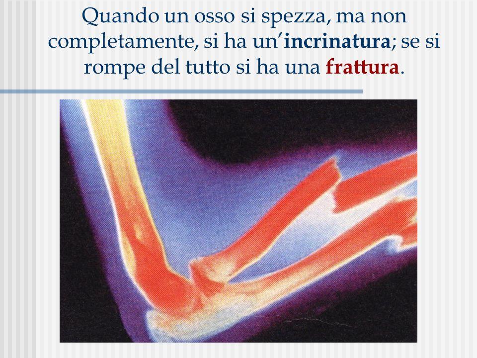 Quando un osso si spezza, ma non completamente, si ha un incrinatura ; se si rompe del tutto si ha una frattura.