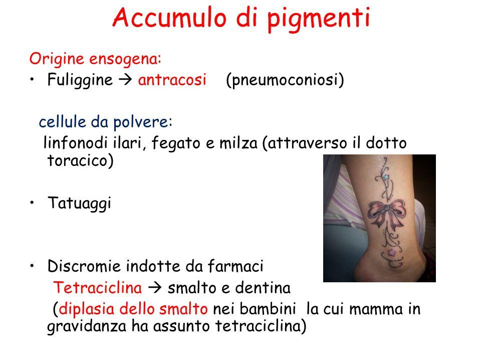 Accumulo di pigmenti Origine ensogena: Fuliggine antracosi (pneumoconiosi) cellule da polvere: linfonodi ilari, fegato e milza (attraverso il dotto toracico) Tatuaggi Discromie indotte da farmaci Tetraciclina smalto e dentina (diplasia dello smalto nei bambini la cui mamma in gravidanza ha assunto tetraciclina)