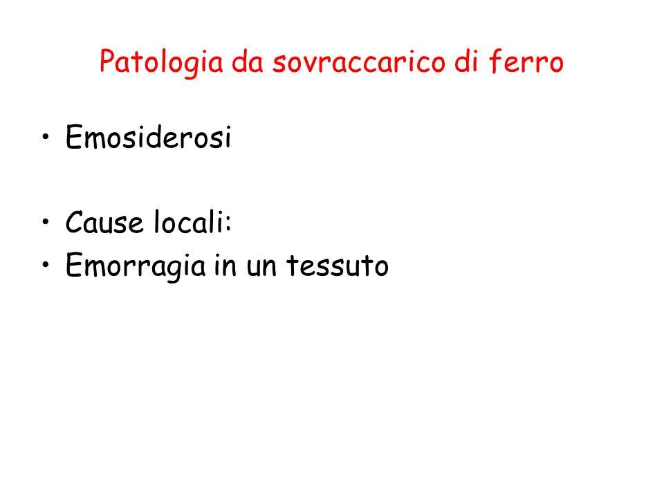 Patologia da sovraccarico di ferro Emosiderosi Cause locali: Emorragia in un tessuto