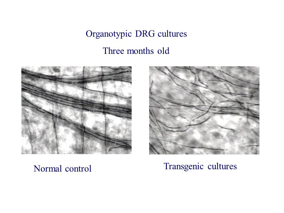 Organotypic DRG cultures Three months old Normal control Transgenic cultures