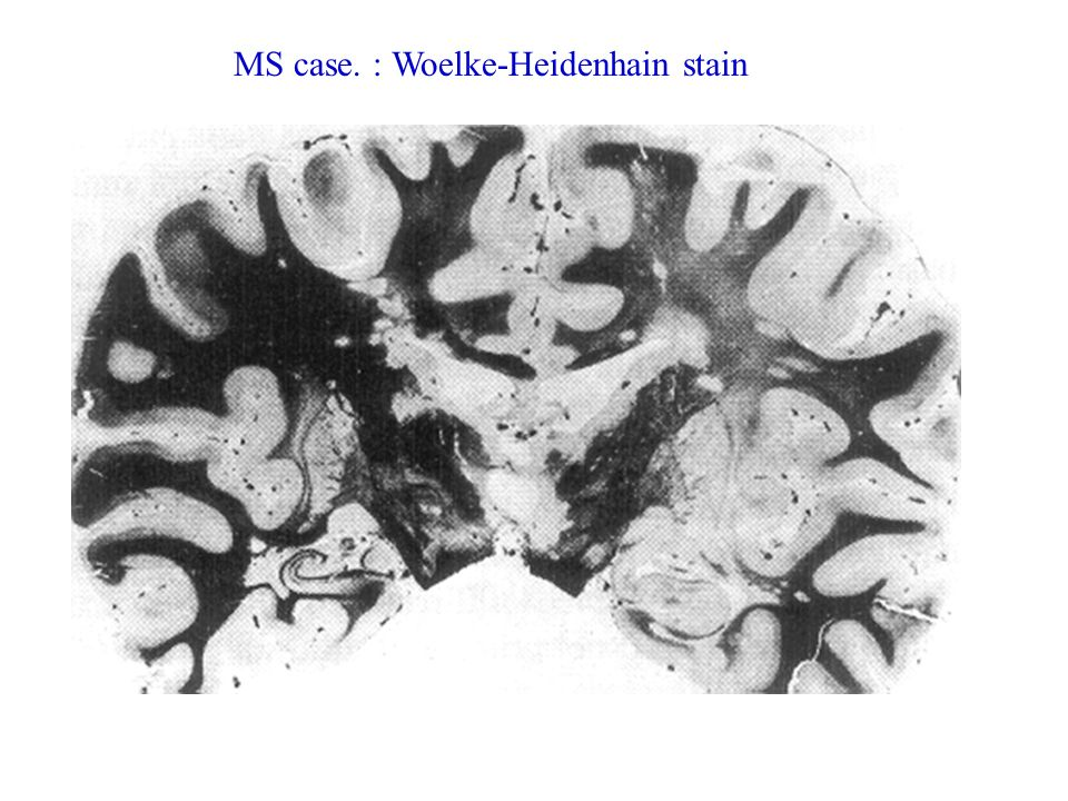 MS case. : Woelke-Heidenhain stain