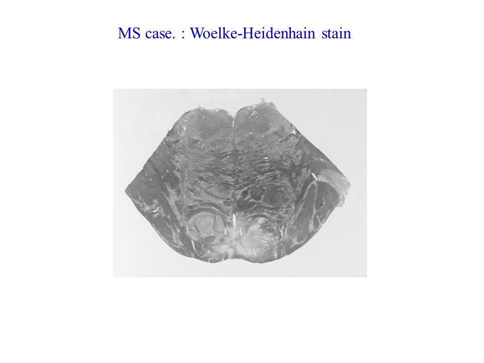 MS case: Oil Red O stain